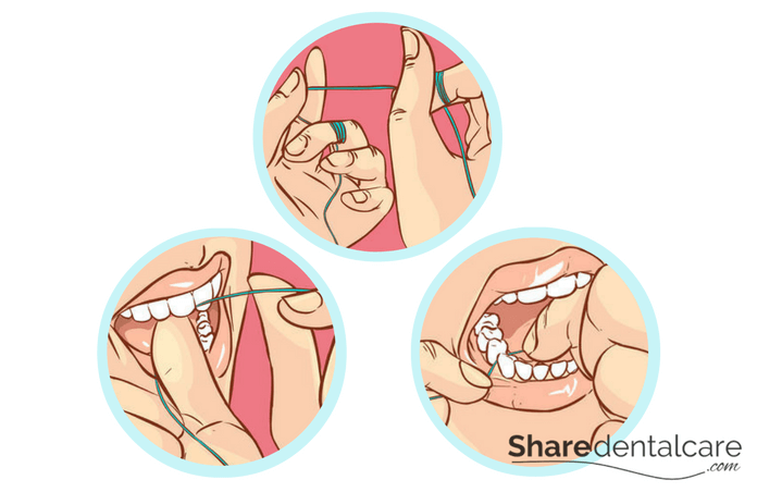 Oral Hygiene and Dental Care: Flossing Technique