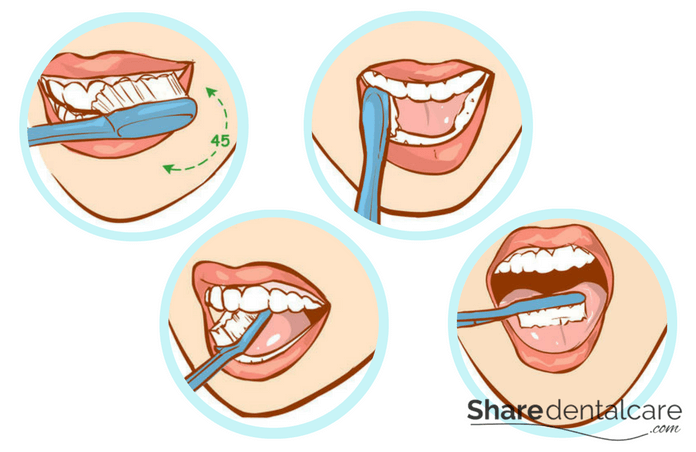 Oral Hygiene and Dental Care: Tooth Brushing Technique