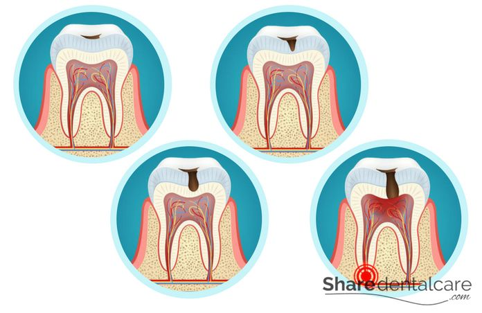 Dental Caries: Causes, Treatment, and Prevention