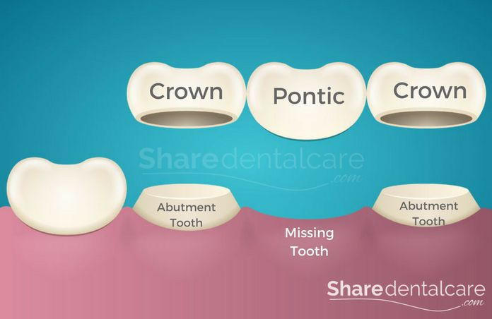 Dental Bridge Structure