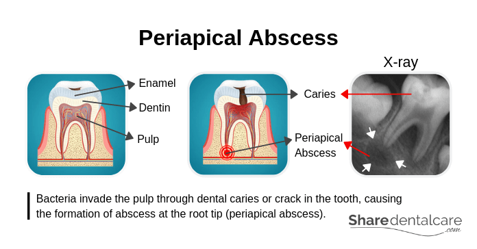 Causes of Periapical Abscess