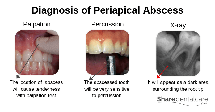 Diagnosis of Periapical abscess