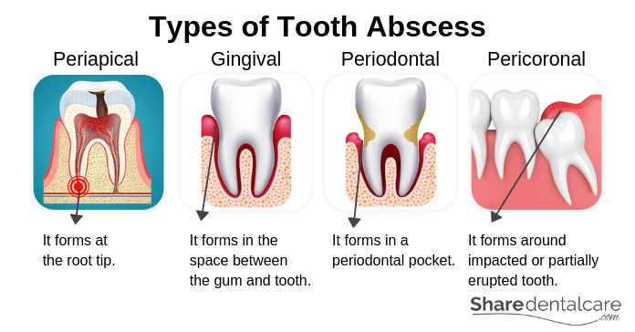 Types of Tooth Abscess