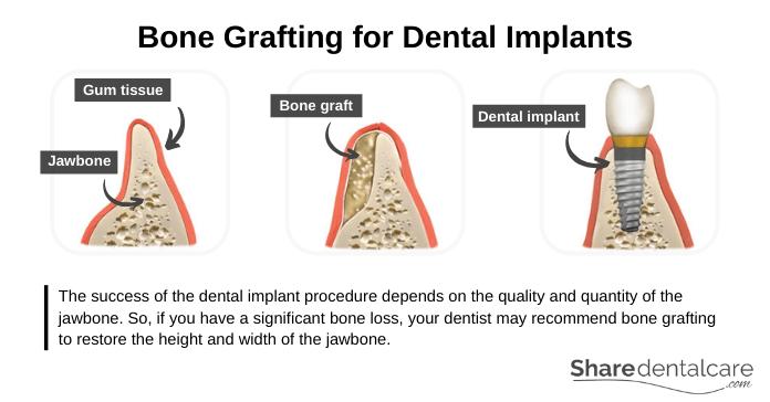 Bone Grafting before the Dental Implant Procedure