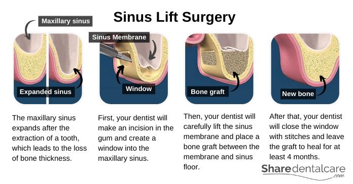 Sinus Lift Surgery